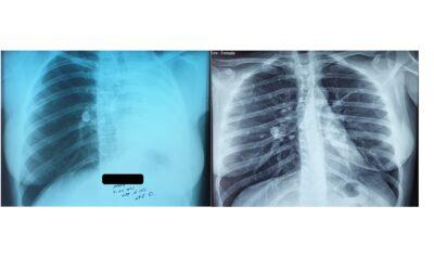 მარცხენა მთავარი ბრონქის სტენტირება, მარცხენა მთავარი ბრონქის ნაწიბუროვანი სტენოზი